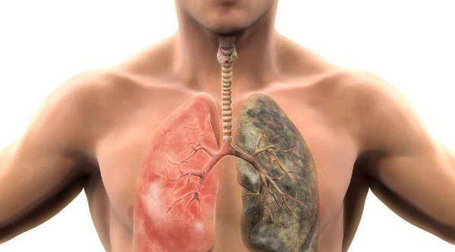 6 bước đơn giản thanh lọc sạch mọi độc tố tích tụ trong phổi