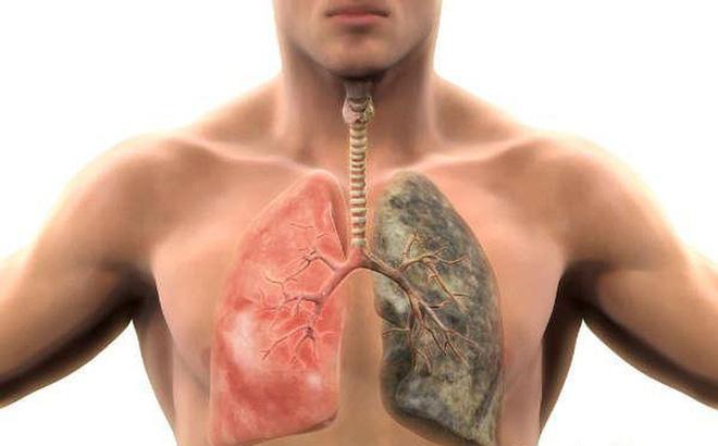 Thanh lọc sạch mọi độc tố tích tụ trong phổi với 6 bước đơn giản ai cũng làm được