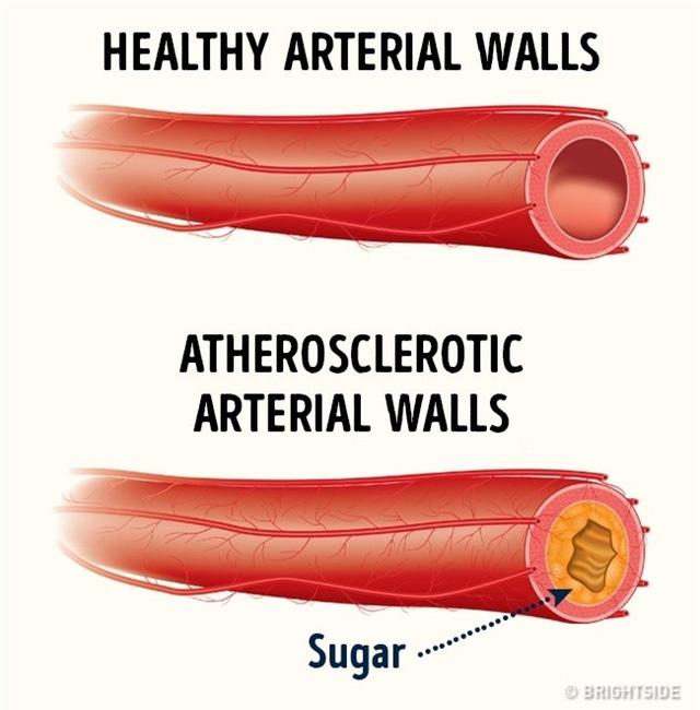 Nhiều nghiên cứu khác cũng cho rằng, việc ăn quá nhiều đường có thể làm gia tăng sự lo âu.