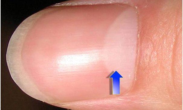 Nhận biết tình trạng sức khỏe nhờ hình bán nguyệt trên móng tay