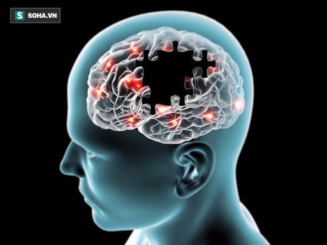 90% người Việt có bệnh ở bộ phận này, không cẩn thận có thể tăng nguy cơ mất trí 70% - Ảnh 1.