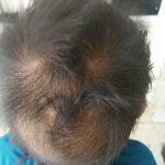 Dự đoán tính cách, vận mệnh tương lai SÁNG LẠN và RỘNG MỞ của bé qua xoáy tóc
