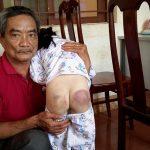 Phẫn nộ: Bé gái 8 tuổi bị giáo viên dạy thêm đánh 20 roi khiến người thâm tím, rướm máu