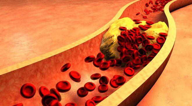 Công thức chữa bệnh cổ đại của người Đức thông mạch máu, giảm cholesterol trong 3 tuần