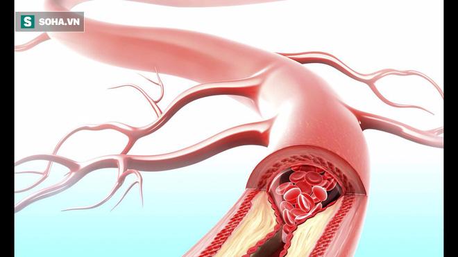 Công thức chữa bệnh cổ đại của người Đức thông mạch máu, giảm cholesterol trong 3 tuần - Ảnh 1.