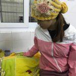 Bé gái 16 ngày tuổi loét thủng giác mạc hai mắt vì người nhà nhỏ sữa mẹ vào mắt