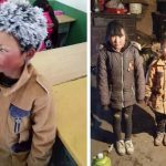 Bé trai Trung Quốc bị đóng băng tóc được tặng 2,6 triệu USD