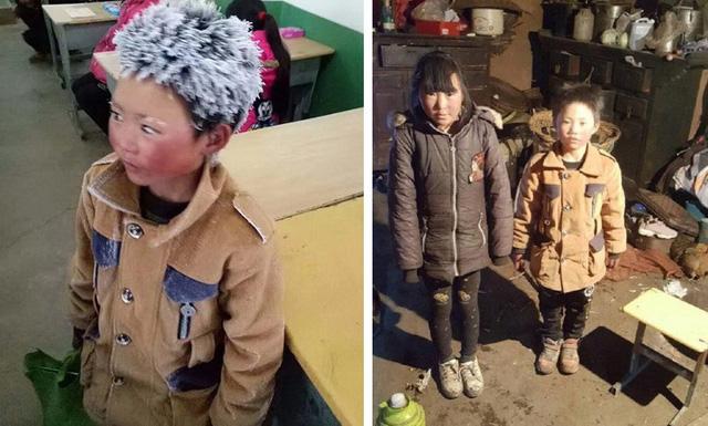 Bé trai Trung Quốc bị đóng băng tóc được tặng 2,6 triệu USD - Ảnh 1.