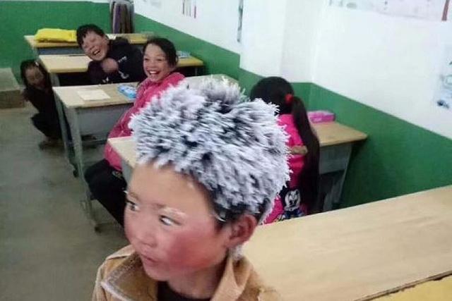 Bé trai Trung Quốc bị đóng băng tóc được tặng 2,6 triệu USD - Ảnh 2.