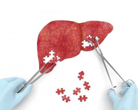 Cảnh giác sớm với 8 hành vi có thể khiến tế bào ung thư gan phát triển nhanh chóng - Ảnh 1.