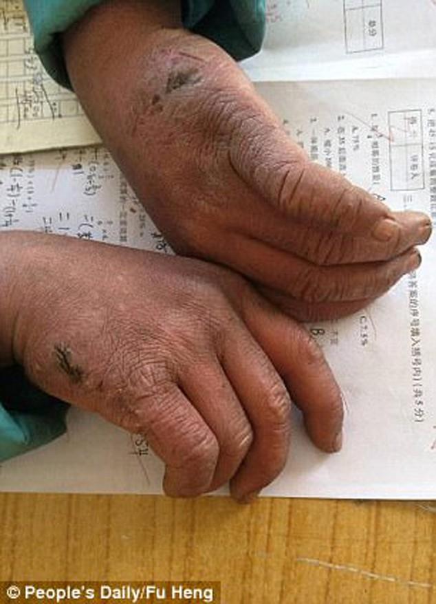Bàn tay của cậu bé 8 tuổi ham học, chịu khó lam lũ việc đồng áng giúp bà.