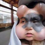 Căn bệnh lạ khiến cô gái 9X có 4 trái bóng trên khuôn mặt