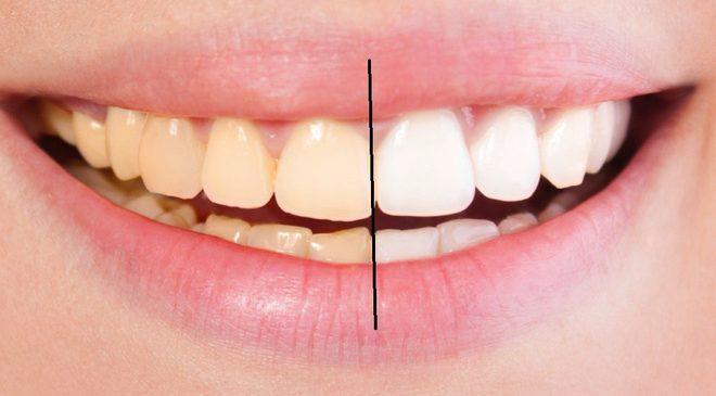 8 cách làm trắng răng hiệu quả và an toàn tại nhà: Lưu lại để dùng khi cần đến