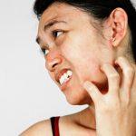 3 dấu hiệu trên mặt cảnh báo bệnh gan đang tiến triển âm thầm bên trong cơ thể