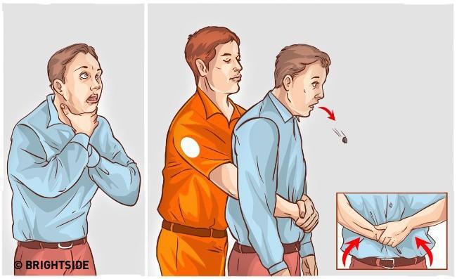 Cách tự cứu mạng khi bị nghẹn, hóc dị vật bạn cần biết - Ảnh 3.