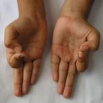 Phương pháp Ấn độ: chỉ bấm ngón tay có thể giúp giảm cân và chữa nhiều bệnh khác