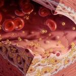 Nguyên tắc vàng trong chế độ ăn uống của người máu nhiễm mỡ
