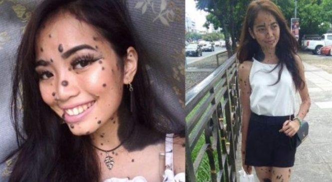 Cô gái có hằng trăm nốt ruồi trên người đi thi Hoa hậu Hoàn Vũ, giám khảo cười cợt cho đến khi cô bước ra thì…
