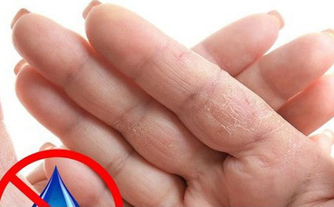 Dấu hiệu bàn tay cho thấy các vấn đề <a  href=