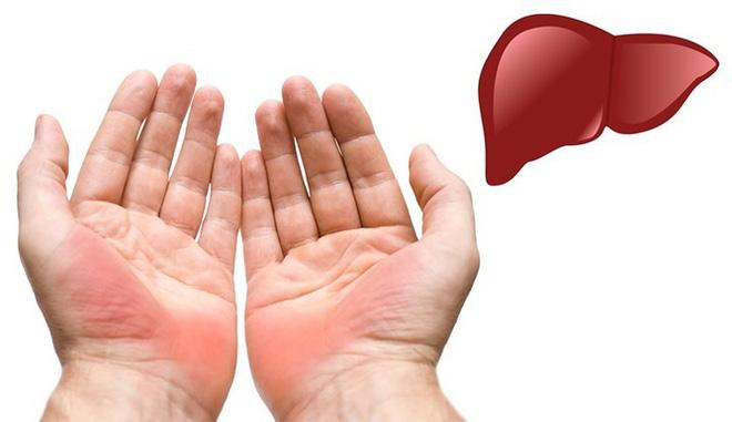 Dấu hiệu bàn tay cho thấy các vấn đề về sức khỏe của bạn - Ảnh 1.