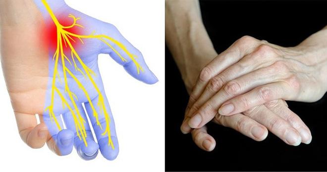 Dấu hiệu bàn tay cho thấy các vấn đề về sức khỏe của bạn - Ảnh 3.