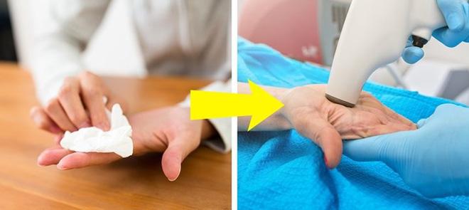 Dấu hiệu bàn tay cho thấy các vấn đề về sức khỏe của bạn - Ảnh 2.