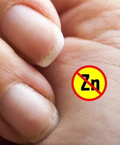 Dấu hiệu bàn tay cho thấy các vấn đề về sức khỏe của bạn - Ảnh 6.