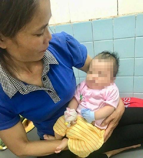 Bé hai tháng tuổi ở Nghệ An bị chó cắn khi đang nằm ngủ trên võng. Ảnh: L.N