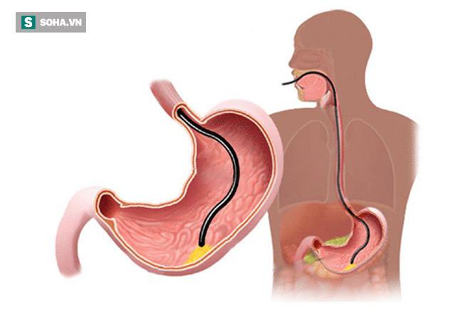 4 thực phẩm vàng giúp sửa chữa, trẻ hóa dạ dày: Hãy ăn bổ sung trước khi phải uống thuốc - Ảnh 1.