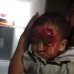 Vụ cha bế con trai 3 tuổi mặt bê bết máu chạy tìm bác sĩ: Kíp trực đi ăn tối